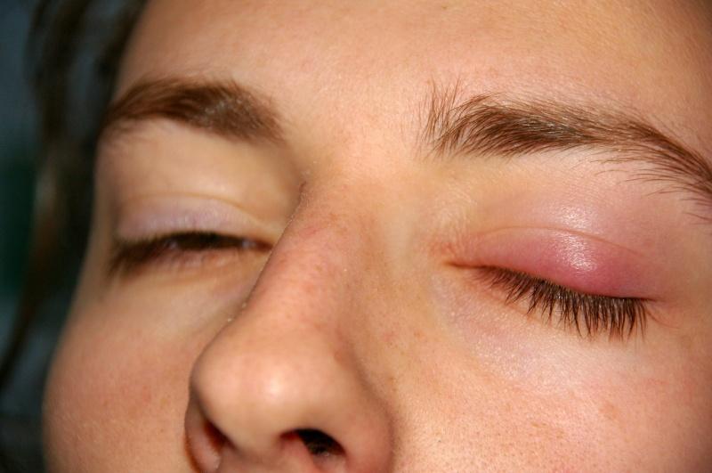 Chora powieka (źródło: wikimedia.org)